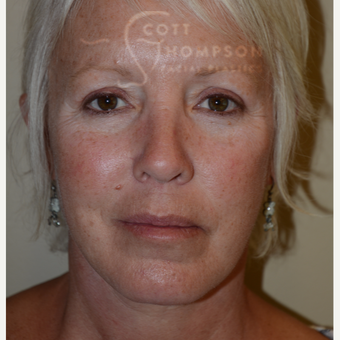55-64 year old woman treated with Facelift after 3399077
