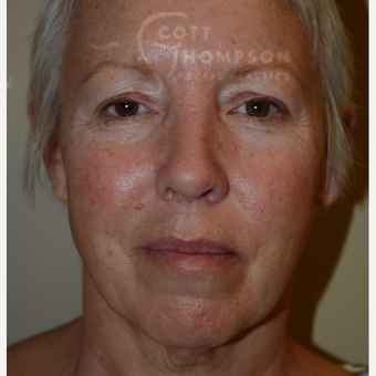 55-64 year old woman treated with Facelift before 3399077