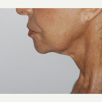 75 and up year old woman treated with Mini Lift before 3549568