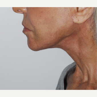 75 and up year old woman treated with Mini Lift after 3549568