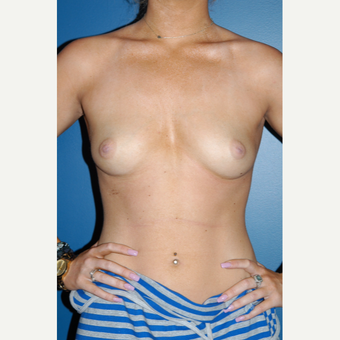 25-34 year old woman treated with Breast Augmentation before 3267087