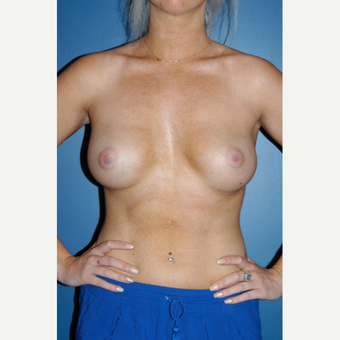 25-34 year old woman treated with Breast Augmentation after 3267087