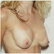 25-34 year old woman treated with Breast Implant Revision