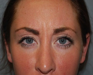 26 Year Old Female, Botox, Glabella and Forehead before 1421887