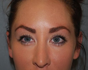 26 Year Old Female, Botox, Glabella and Forehead after 1421887