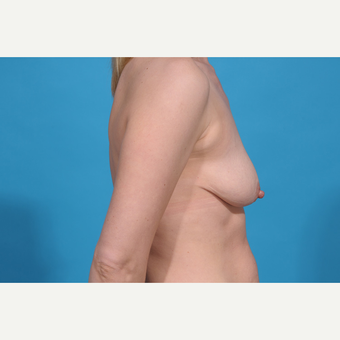 35-44 year old woman treated with Breast Lift with Implants before 3777084