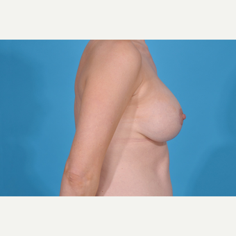 35-44 year old woman treated with Breast Lift with Implants after 3777084