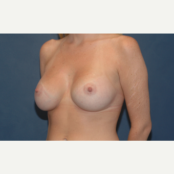 30 year old woman treated with Breast Implants after 3306149