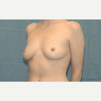 30 year old woman treated with Breast Implants before 3306149