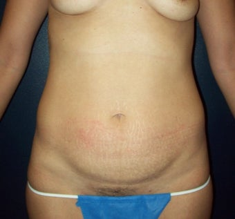 35-44 year old woman treated with Mini Tummy Tuck (Skin Only) before 3201705