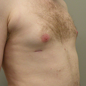 25-34 year old man treated with Male Breast Reduction 2853019