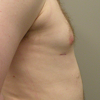 25-34 year old man treated with Male Breast Reduction after 2853019