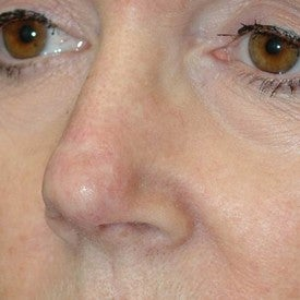 Nasal reconstruction after Mohs surgery after 665295