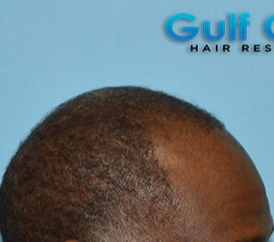 45-54 year old man treated with FUE Hair Transplant before 3624445
