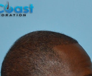 45-54 year old man treated with FUE Hair Transplant after 3624445