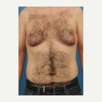 32 year old man treated with Male Breast Reduction