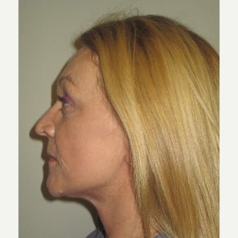 53 year old woman treated with Facelift