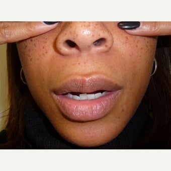 25-34 year old woman treated with Lip Lift before 1765359