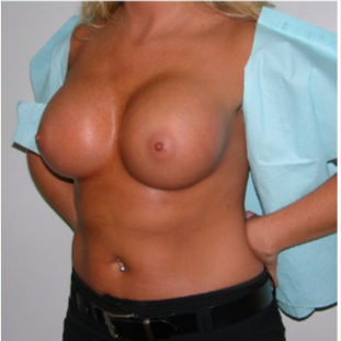 25-34 year old woman treated with Breast Implants after 3441218
