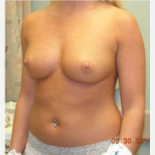 25-34 year old woman treated with Breast Implants before 3441218