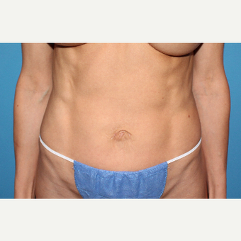 25-34 year old woman treated with Belly Button Surgery after 2745843