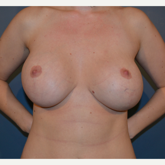 35-44 year old woman treated with Breast Fat Transfer before 3414933