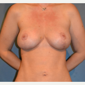 35-44 year old woman treated with Breast Fat Transfer after 3414933