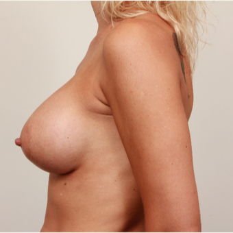 35-44 year old woman treated with Breast Augmentation - Contoured Implants after 3487469