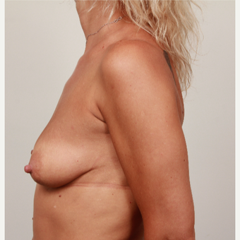 35-44 year old woman treated with Breast Augmentation - Contoured Implants before 3487469