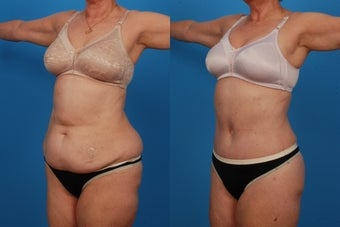 Lipo/Tummy Tuck: 59-Year-Old Woman after 1050715