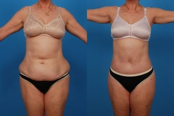 Lipo/Tummy Tuck: 59-Year-Old Woman before 1050715