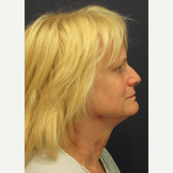 55-64 year old woman treated with Lower Face Lift before 3702874