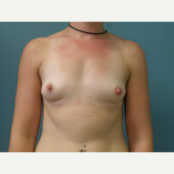 25-34 year old woman treated with Breast Augmentation before 3035156