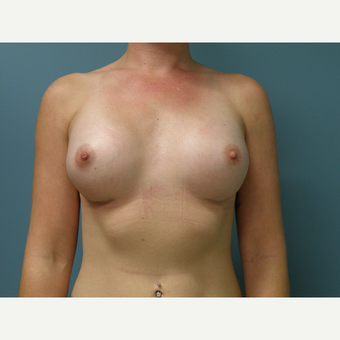 25-34 year old woman treated with Breast Augmentation after 3035156