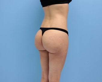 Brazilian buttock lift Los Angeles after 1117501