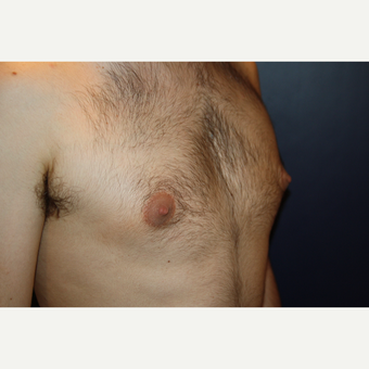 18-24 year old man treated with Male Breast Reduction before 3124815