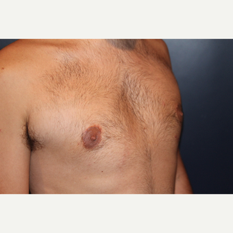 18-24 year old man treated with Male Breast Reduction after 3124815