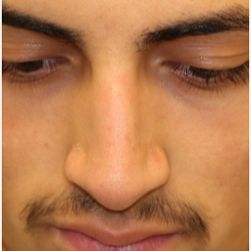 18-24 year old man treated with Rhinoplasty after 3833644