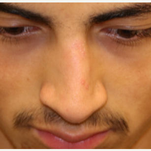 18-24 year old man treated with Rhinoplasty before 3833644