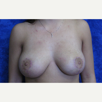 18-24 year old woman treated with Breast Lift after 3305842