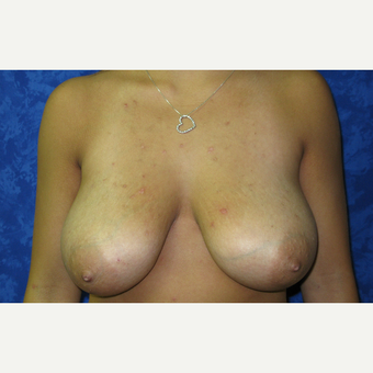 18-24 year old woman treated with Breast Lift before 3305842