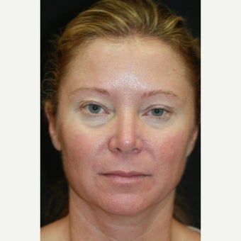 43 year old woman treated with Upper and Lower Blepharoplasty and Lateral Canthopexy before 1781141