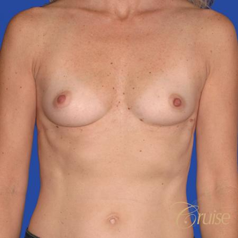 47 year old had Breast Augmentation with 300cc silicone implants before 3522736