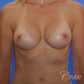 47 year old had Breast Augmentation with 300cc silicone implants after 3522736
