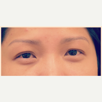 35-44 year old woman treated with Asian Eyelid Surgery before 3305752