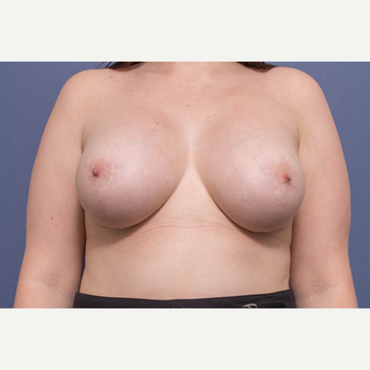 25-34 year old woman treated with Breast Lift with Implants after 3728886