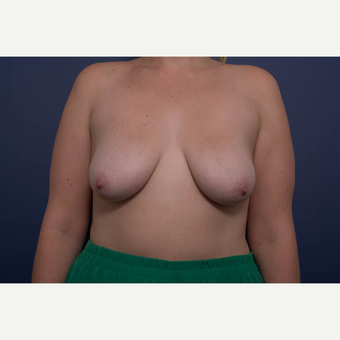 25-34 year old woman treated with Breast Lift with Implants before 3728886