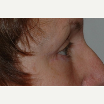 Eyelid Surgery after 3346355