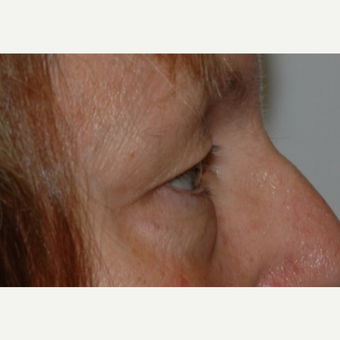 Eyelid Surgery before 3346355