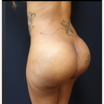 25-34 year old woman treated with Fat Transfer and Butt Implants for her Butt Lift after 3129332